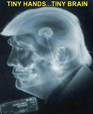 X-ray of Trump's head with caption: tiny hands...tiny brain.